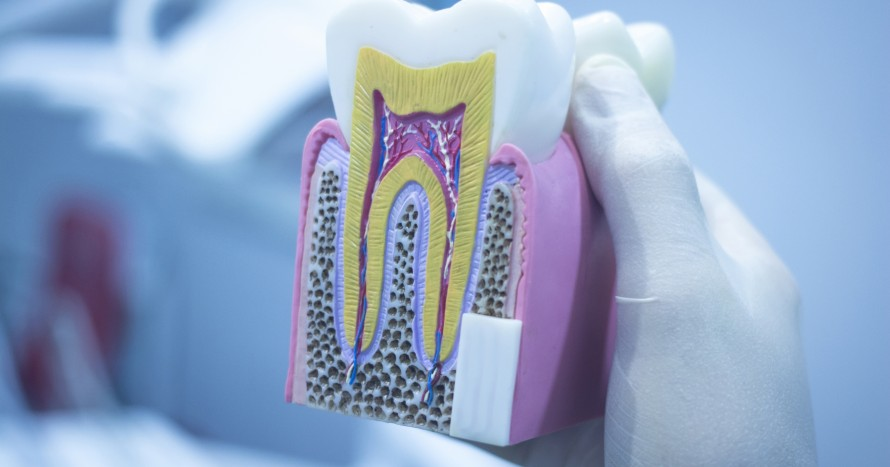 12280475-dental-tooth-model-cast-showing-decay-enamel-roots